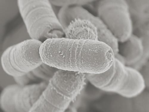 コリンセラ アエロファシエンス(レンサ(連鎖)桿菌)
